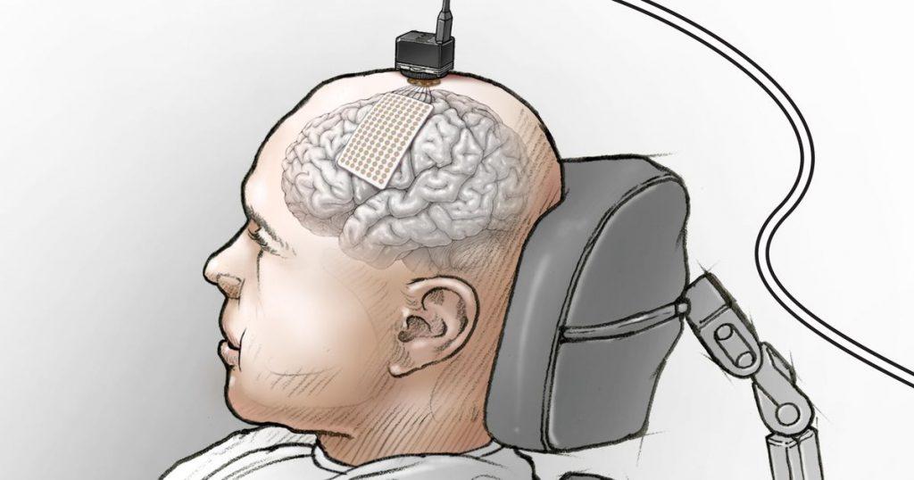 """L'impianto cerebrale trasforma i pensieri in parole per aiutare l'uomo paralizzato a """"parlare"""" di nuovo"""
